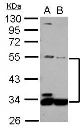 GTX110681 - MIP1