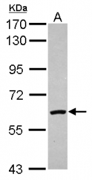 GTX110704 - Catalase