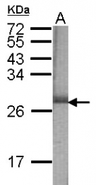 GTX110716 - Beta-Synuclein / SCNB