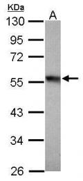 GTX110717 - alpha Tubulin / TUBA1B