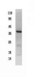 GTX110720-pro - MAP kinase p38 alpha / MAPK14