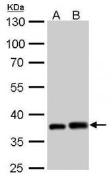 GTX110721 - Peroxin 19 / PEX19