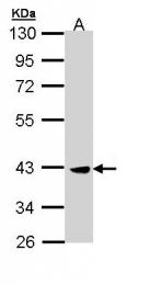 GTX110726 - CSNK2A2 / CK2A2