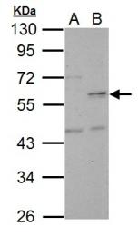 GTX110734 - NUF2 / CDCA1