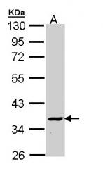 GTX110740 - ATP6V1C2