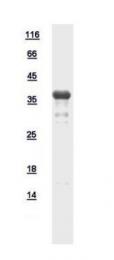 GTX111006-pro - ATP6V0D2