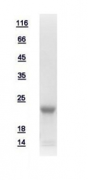 GTX111009-pro - HBX-interacting protein / XIP
