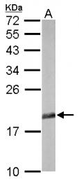 GTX111013 - EIF5A1