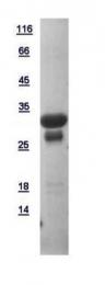 GTX111025-pro - ATP6V1D