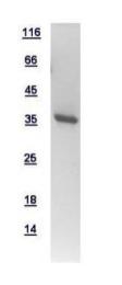 GTX111027-pro - ATP6V0D1
