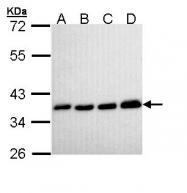 GTX111031 - Pyrophosphatase 1 / PPA1