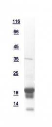 GTX111037-pro - NUDT2 / APAH1