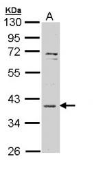 GTX111061 - MAPKAP Kinase-3