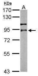 GTX111071 - RPS6KA2 / RSK3