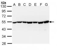 GTX111077 - DNAJA3 / TID1