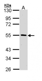 GTX111124 - HIP1-interacting protein
