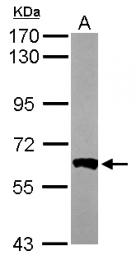GTX111141 - PPP3CB / CALNA2