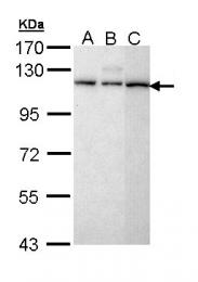 GTX111158 - SART1