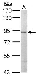 GTX111162 - JIP-2