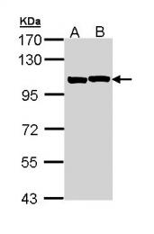GTX111167 - Alpha-actinin-2 / ACTN2
