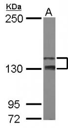 GTX111170 - TAO kinase 2 (TAOK2)