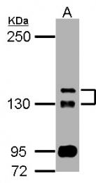 GTX111171 - TAO kinase 2 (TAOK2)
