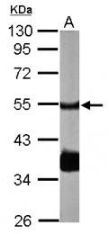 GTX111224 - PPP2R2B