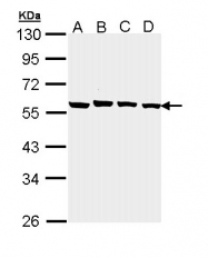GTX111227 - Protein phosphatase 1B / PPM1B