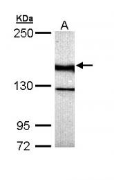 GTX111244 - UNC13B