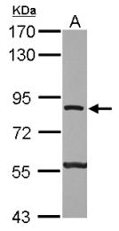 GTX111275 - ATP6V0A2