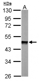 GTX111288 - Protein phosphatase 1A / PPM1A