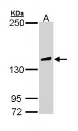 GTX111293 - PLCG2