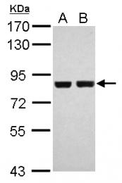 GTX111302 - RPS6KA3 / RSK2