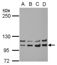 GTX111314 - CD220 / INSR