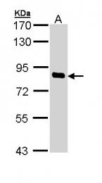GTX111355 - SCYL1
