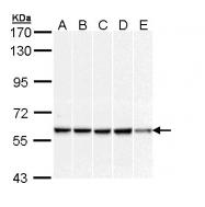 GTX111383 - DNAJC3