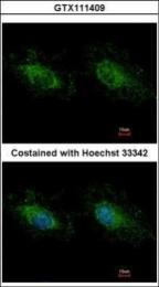GTX111409 - Hexokinase-3
