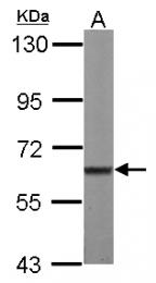 GTX111438 - MPP2