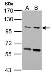 GTX111476 - Unc-51-like kinase 2 (ULK2)
