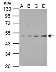 GTX111478 - ABI1 / SSH3BP1