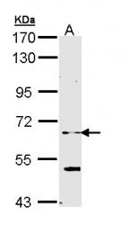GTX111492 - ELP3