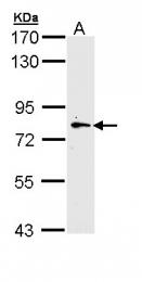 GTX111514 - MLCK2
