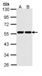 GTX111517 - Glucokinase / Hexokinase-4