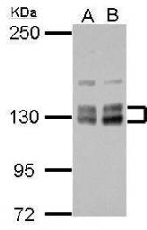 GTX111614 - HISPPD1