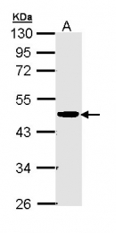 GTX111620 - CKMT2