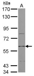 GTX111637 - Muscarinic acetylcholine receptor M3