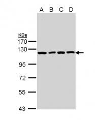 GTX111664 - Insulin-degrading enzyme