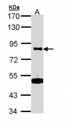 GTX111672 - CD61 / ITGB3