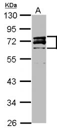 GTX111677 - Lamin-A/C (LMNA)