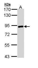 GTX111702 - Transglutaminase-2 (TGM2)